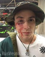 Вцентре украинской столицы избили солиста популярной группы Quest Pistols